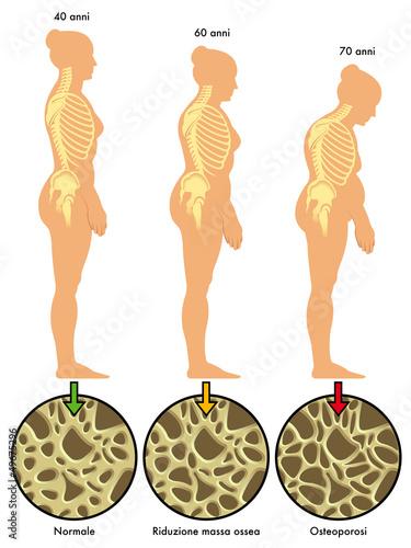 Fotografía  osteoporosi 3