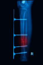 Leg X-rays Image Showing Plate...