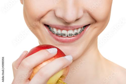 Fotografia  brackets on teeth