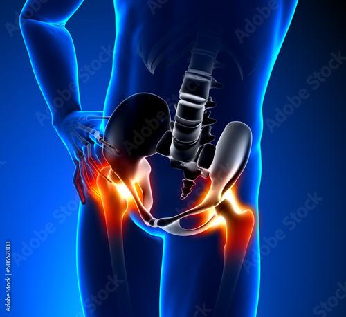 Obraz Hip Pain Male - fototapety do salonu