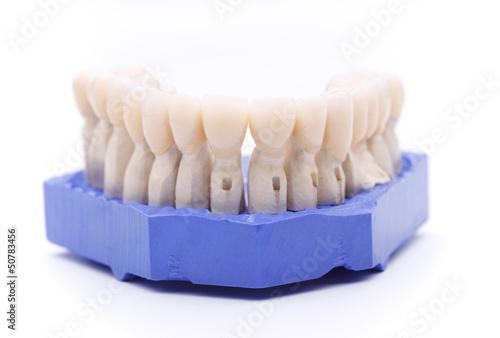 Valokuva  zahnabdruck mit zahnkronen