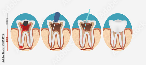 Photo Root canal process