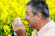 canvas print picture - Man with hay fever on blooming rapeseed field