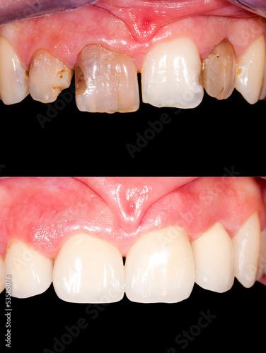 Fotografie, Obraz  Dental restoration