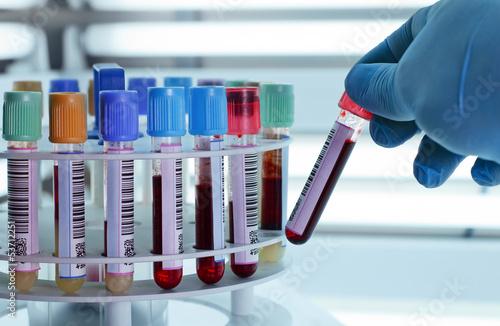 Fotografía  Blood tubes for centrifuging