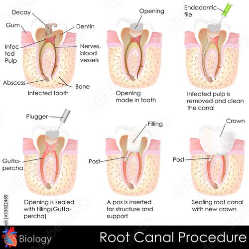 Root Canal Procedure #53822465