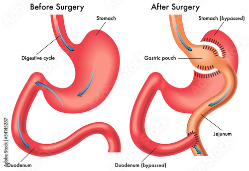 Photo  Bypass gastrico