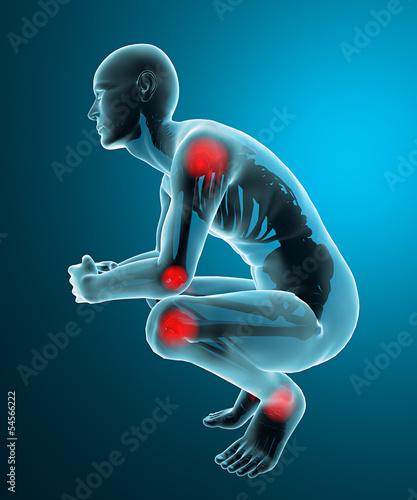 Fotografia  Uomo dolore articolazione ai raggi x