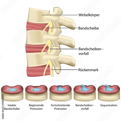 Plakat  Bandscheibenvorfall - Wirbelsäule