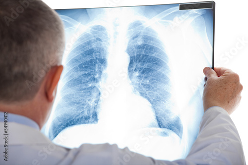 Photo Doctor examining a lung radiography