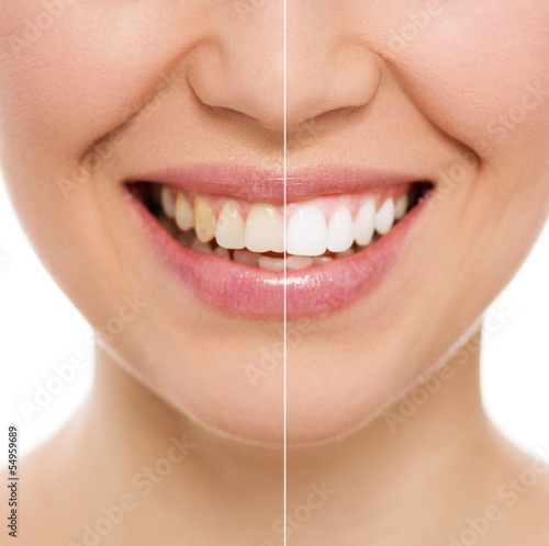 Fotografie, Obraz  Before and after bleaching or whitening treatment, isolated