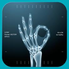 X-ray Of Both Human Hand (OK!), Vector Eps10 Illustration.