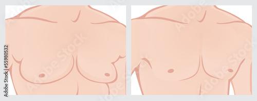 ginecomastie ciroza hepatică