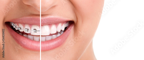 Stampa su Tela  Healthy smile with braces