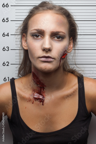 Fényképezés  Wounded woman have snapshot in police department.