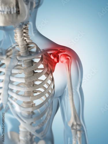 Canvas Print 3d rendered illustration of a painful shoulder