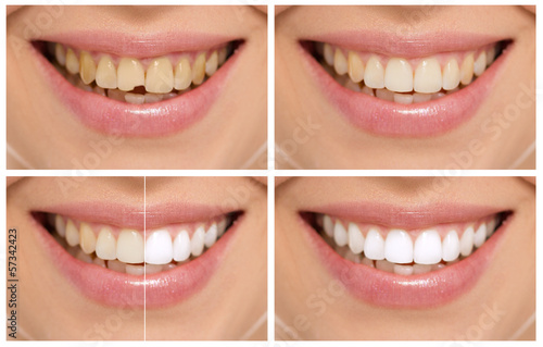 Fotografie, Obraz  Teeth decay cure. Tooth whitening. Before and after.