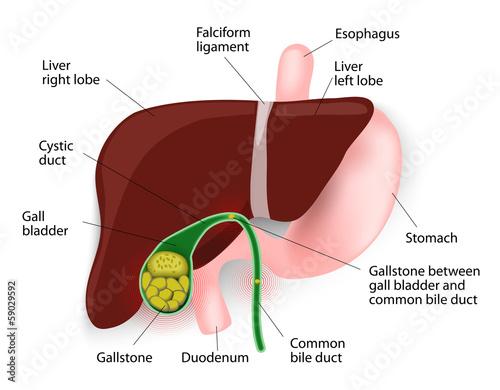 litiaza biliara ciroza hepatică