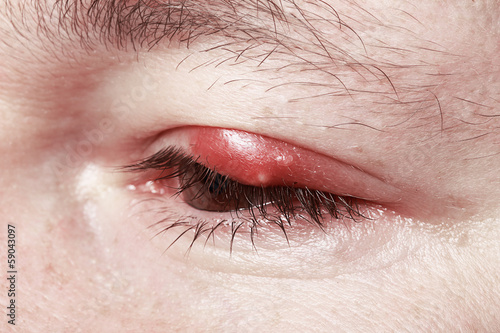 Photo Chalazion and Blepharitis. Sore Red Eye. Sickness