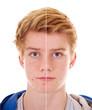 canvas print picture - Teenager mit unreiner Haut   vorher – nachher
