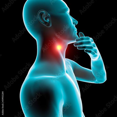 Fotografia, Obraz  Mal di gola infiammazione arrossamento dolore
