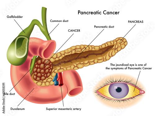 cncer pancreas