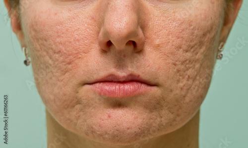 Photo Problematic skin