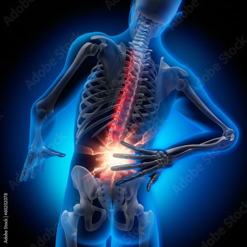 Cuadros en Lienzo  Rückenschmerz 2