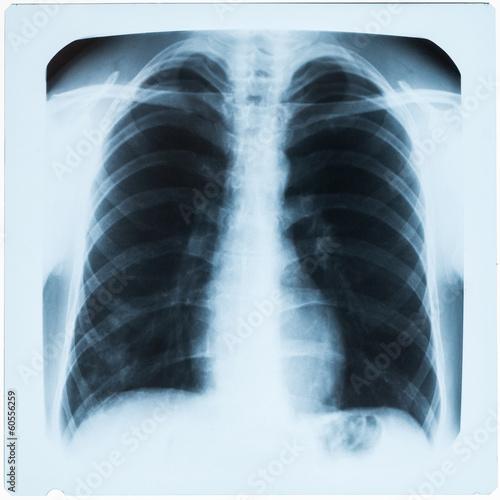 Fotografie, Obraz  X-ray hruď při zápalu plic