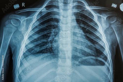 Fotografie, Obraz  Child X-Ray Film