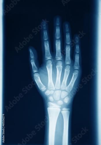 Fotografie, Obraz  Radiografia mano