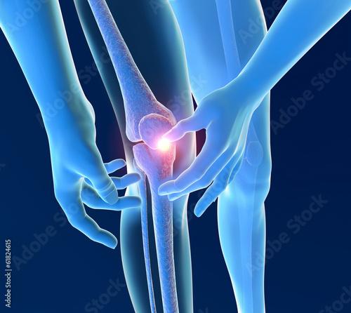 Photo Infiammazione dolore ginocchio scheletro raggi x