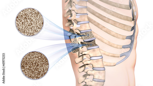 Fotografía  Osteoporose im Rückenwirbel