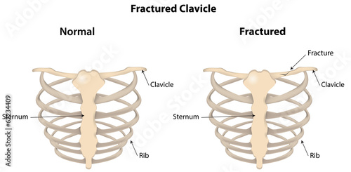 fractured clavicle labeled diagram buy this stock illustration andfractured clavicle labeled diagram