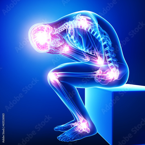 Fotografia  Anatomy of male brain pain with all joints pain in blue
