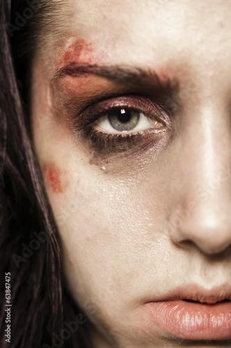 Fototapety, obrazy: Beaten up girl close-up half