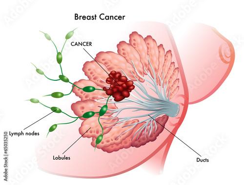 Fotomural cancro del seno