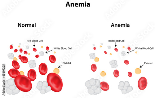 Anemia Labeled Diagram Canvas Print
