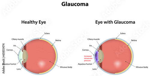 Fotografía  Glaucoma