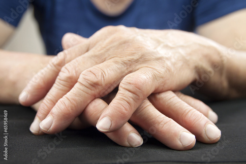 Hand Of Woman Deformed From Rheumatoid Arthritis Canvas-taulu
