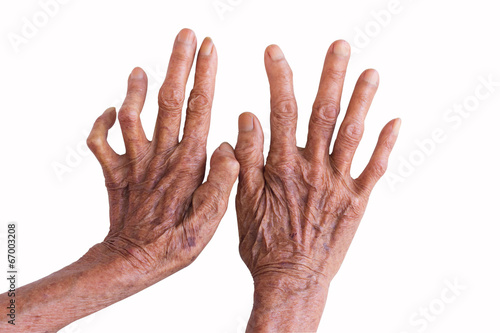 Fotografie, Obraz hands of a leprosy isolated on white background