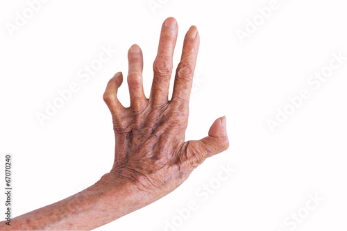 left hand of a leprosy isolated on white background Wallpaper Mural