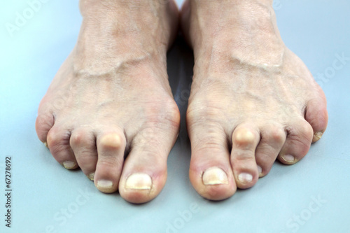 Feet Of Woman Deformed From Rheumatoid Arthritis Fototapeta