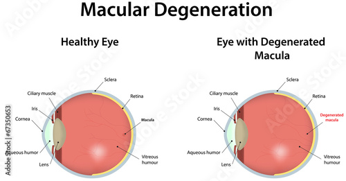 Fotomural  Age Related Macular Degeneration