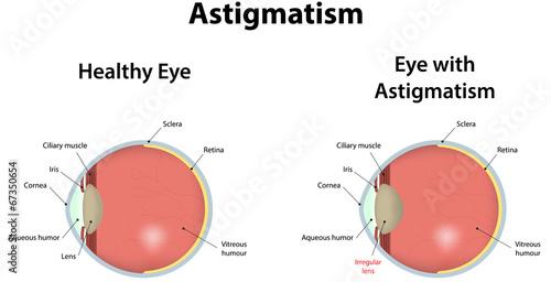 Obraz na plátne  Astigmatism