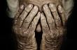 Leinwandbild Motiv Closeup portrait depressed old woman covering her face with hand