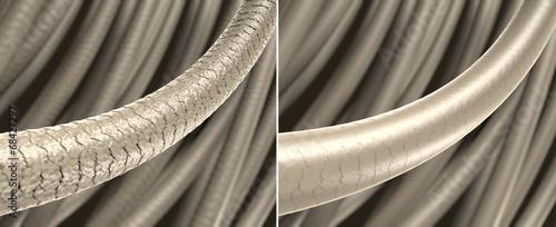 Photo Haar-Struktur - strapaziertes und gesundes Haar: 3D-Illustration