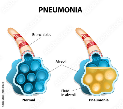 Photo Pneumonia. Illustration shows normal and infected alveoli.