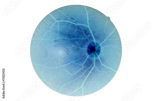 Fotomural Human eye anatomy, retina, optic disc artery and vein etc.