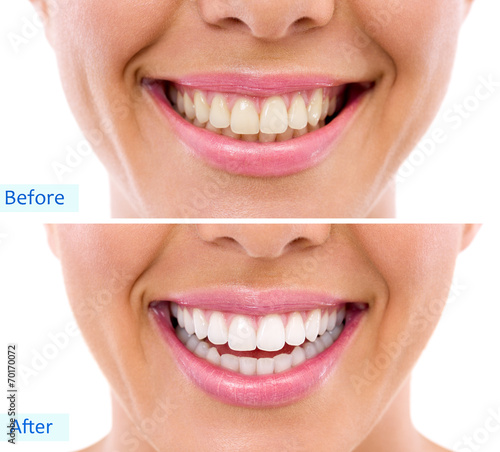 Valokuva  whitening - bleaching treatment ,woman teeth and smile, before a